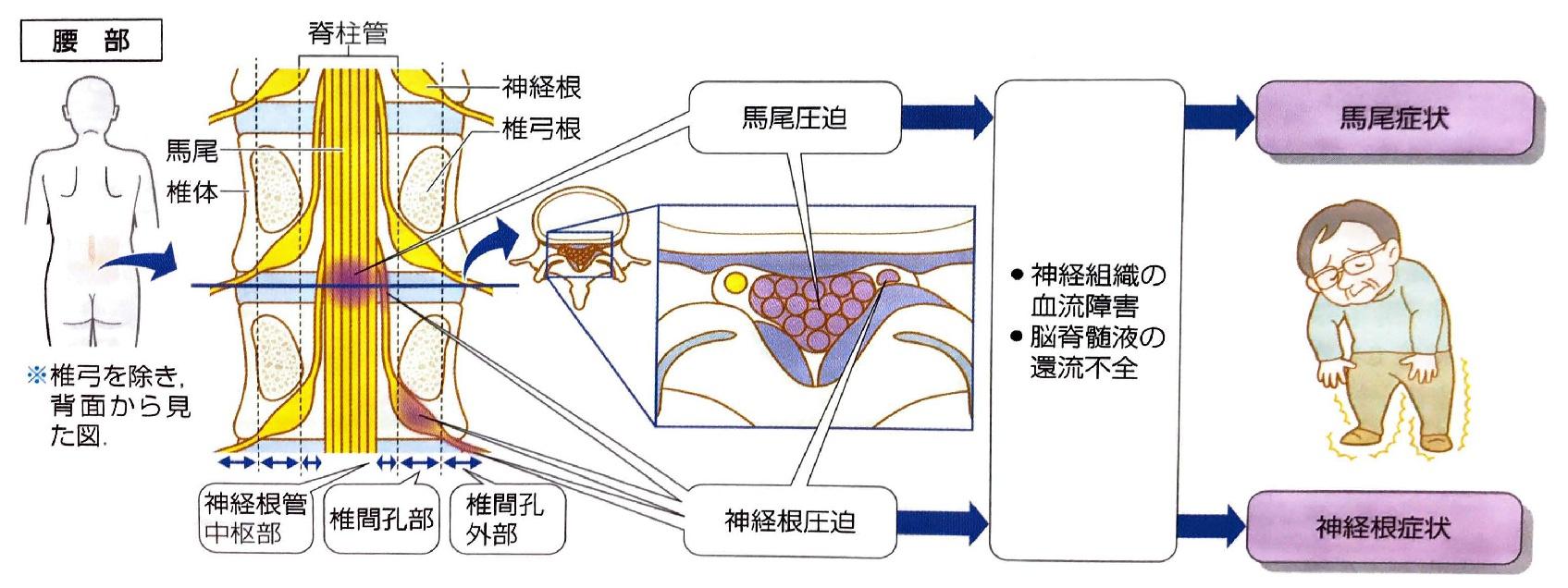 症 管 と 脊柱 は 腰部 狭窄